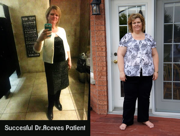 What they are saying on Vertical Sleeve.com about Mexicali Bariatric Center