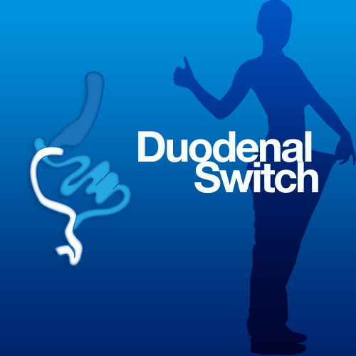 VIDEO | Gastric sleeve revision to Duodenal Switch by Dr. Ungson at MBC