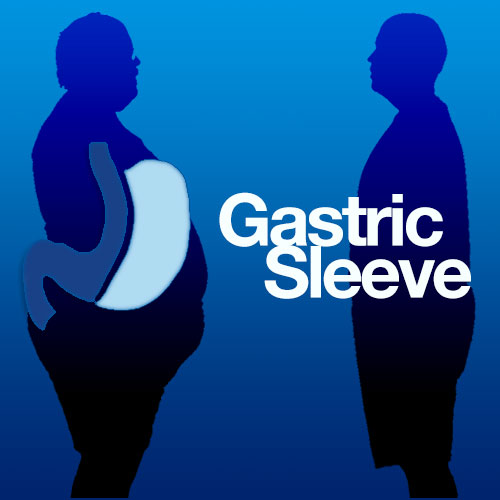 Gastric Sleeve Surgeon in Mexico