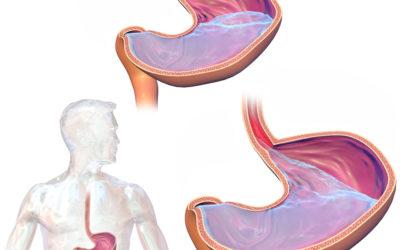 Bypass Gástrico RNY como solución para ERGE tras cirugía bariátrica