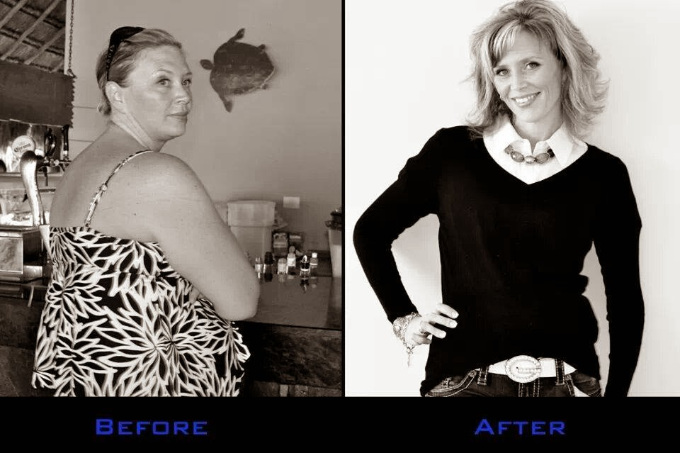 Successful Weight Loss Surgery Patients