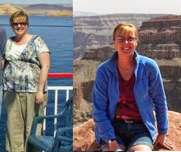 Weight loss surgery: Before | After